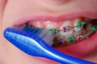 Braces Care - Orthodontist in Alpharetta and Suwanee, GA