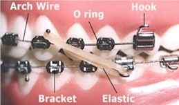 Orthodontic Terms - Orthodontist in Alpharetta and Suwanee, GA